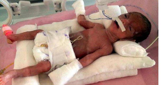 Prematüre bebek hayata tutundu