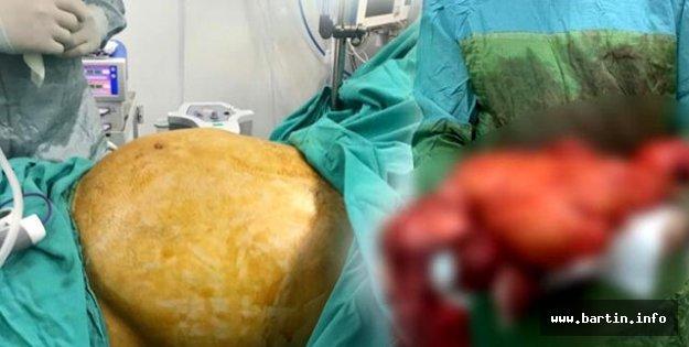 Karnından 11 Kilo Kitle Çıkarıldı