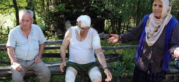 Ayının Saldırdığı Emekliye 60 Dikiş Atıldı