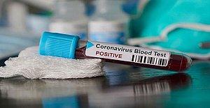 860 Kişinin Katıldığı Kongrede Virüs Tespit Edildi