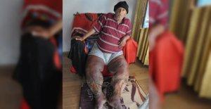 Fil Hastalığına Yakalandı, Hayatı Karardı